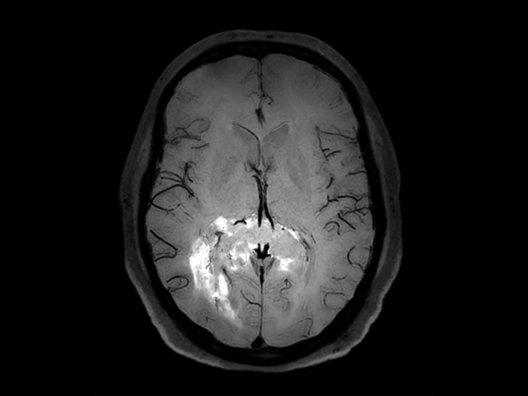 Axial 3D BrainVIEW Black Blood