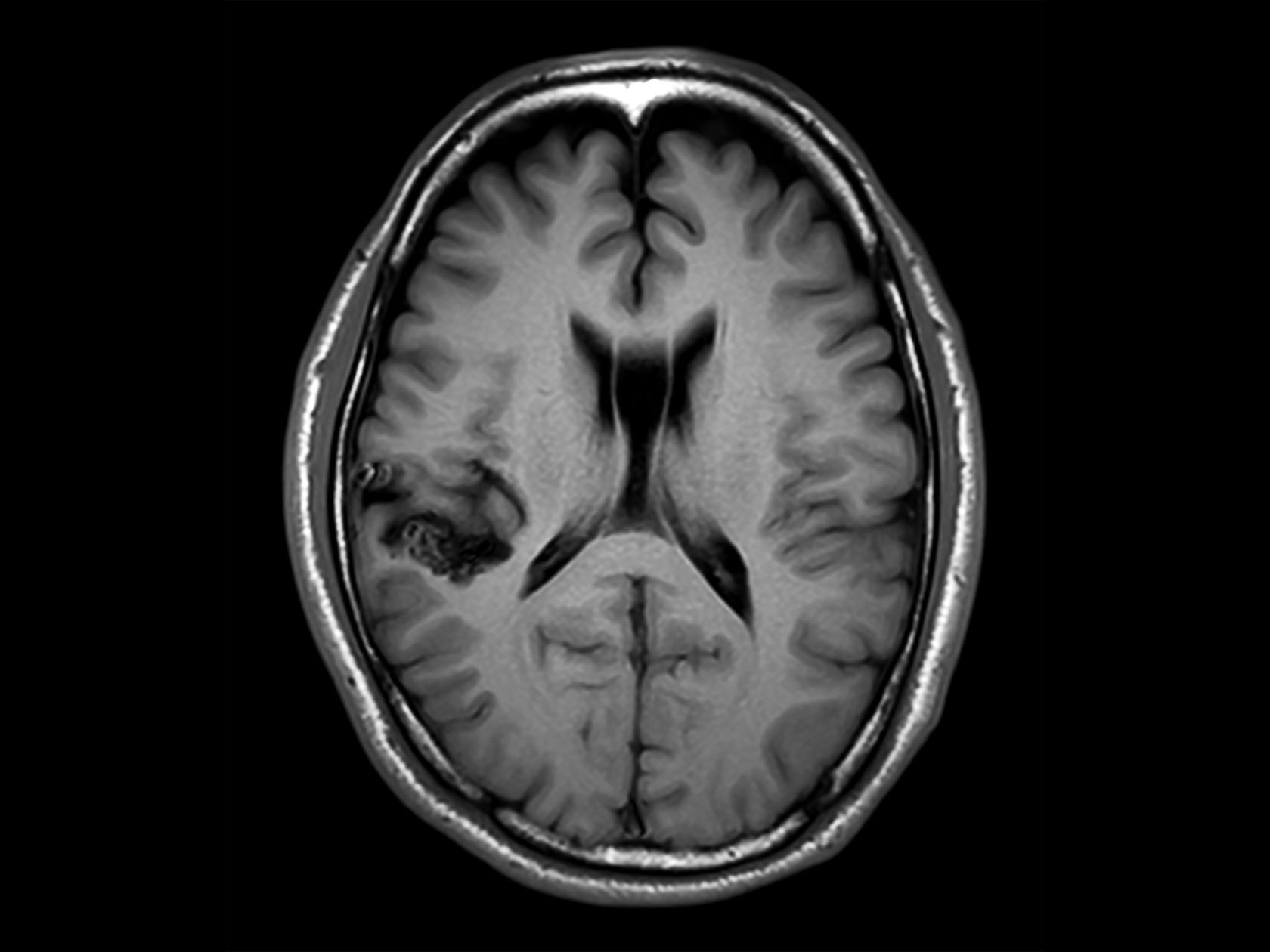 Contrast-free imaging of brain vascular anatomy | Philips MR Body Map