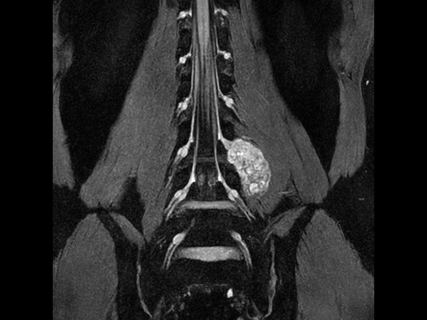 Neurography T2w FFE (MIP) (without Compressed SENSE)