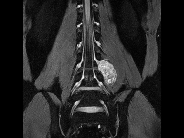 Neurography T2w FFE (MIP) (with Compressed SENSE)