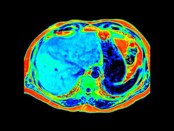 Fat fraction by mDixon Quant: 18-20% in equivalent locations up to 25% in the whole liver