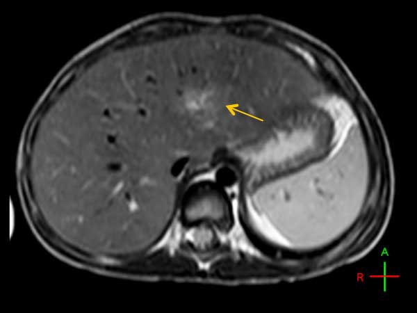 Axial T2w TSE (with Resp. Navigator)