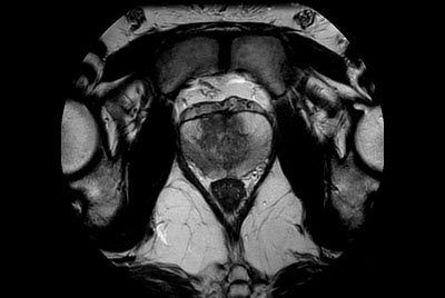 Motion-free Prostate imaging