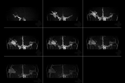 Contrast-free imaging of brain vascular anatomy