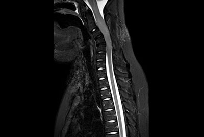 Total Spine on a 14 year old patient
