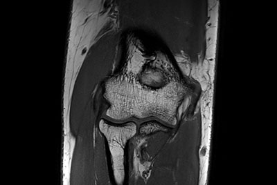 Imaging with the dS 16ch Small Extremity coil