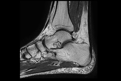Ankle imaging with the dS 16ch FootAnkle coil