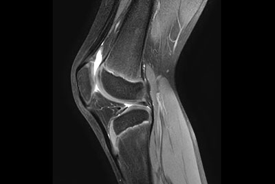 Pediatric knee (8 year old) on BlueSeal magnet