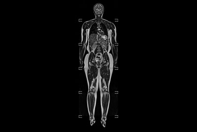 Whole Body imaging under 30 minutes on BlueSeal magnet