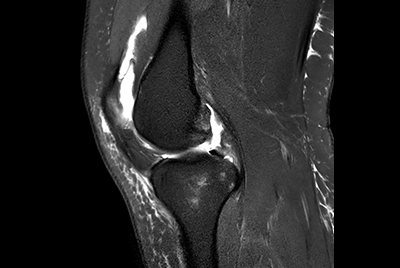 Knee exam with/without Compressed SENSE
