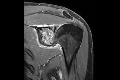 Shoulder with oncologic mass