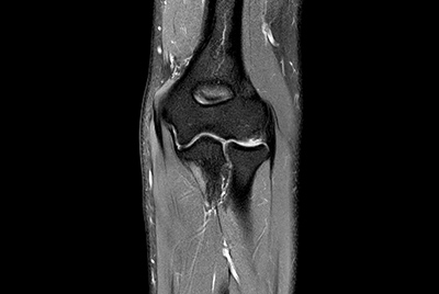 High quality Elbow imaging with Compressed SENSE