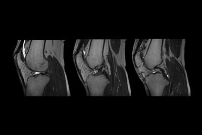3D Knee imaging with MSK VIEW