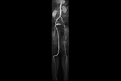 MR Angiography (run-off)