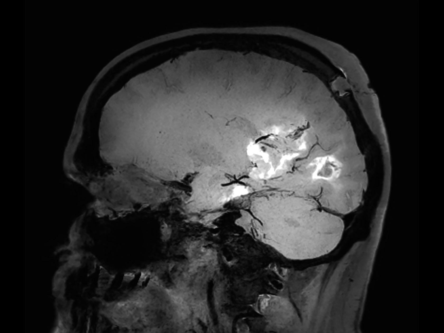 Sagittal 3D BrainVIEW Black Blood