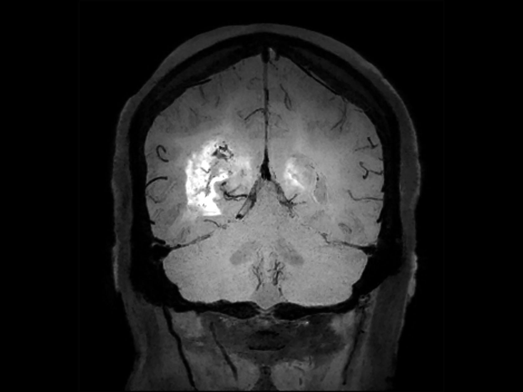 Coronal 3D BrainVIEW Black Blood