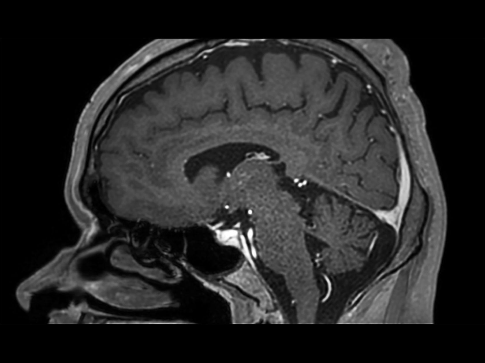 Sagittal 3D T1w TFE (post-gado)