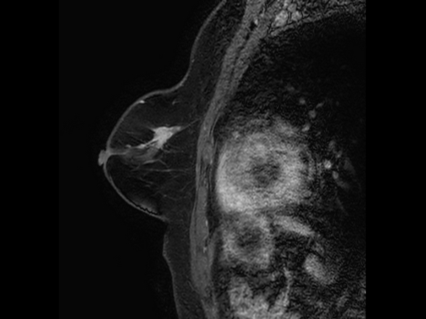 Sagittal eTHRIVE plus gado