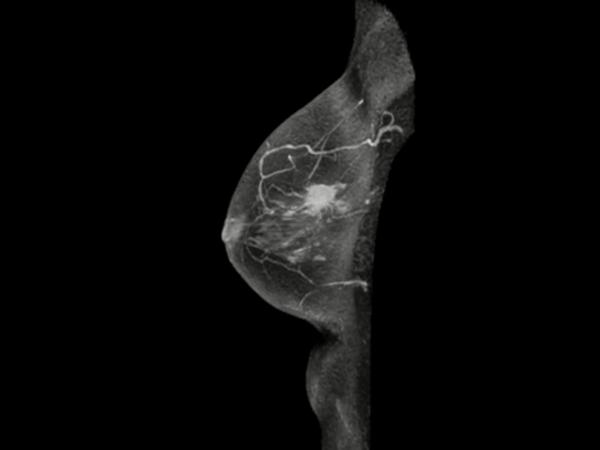 Sagittal eTHRIVE plus gado (MIP)