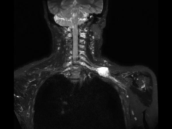 Coronal 3D STIR (oblique MIP)