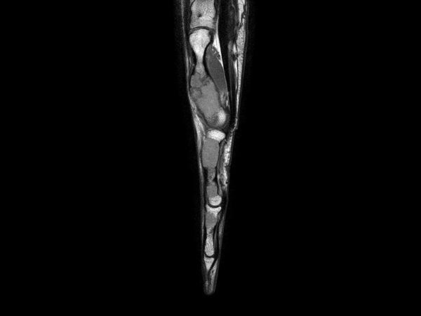 Sagittal T1w mDIXON XD TSE (In Phase)