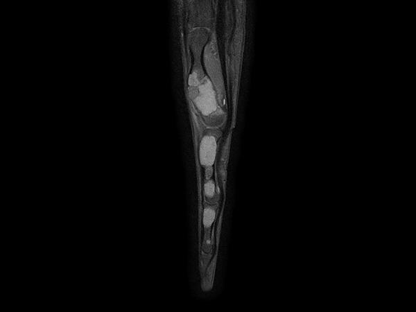 Sagittal T1w mDIXON XD TSE (Partial FatSat)
