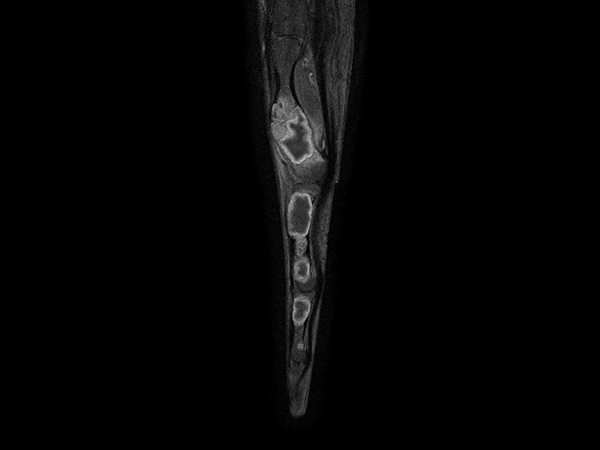 Sagittal T1w mDIXON XD TSE (Partial FatSat) (with gado)