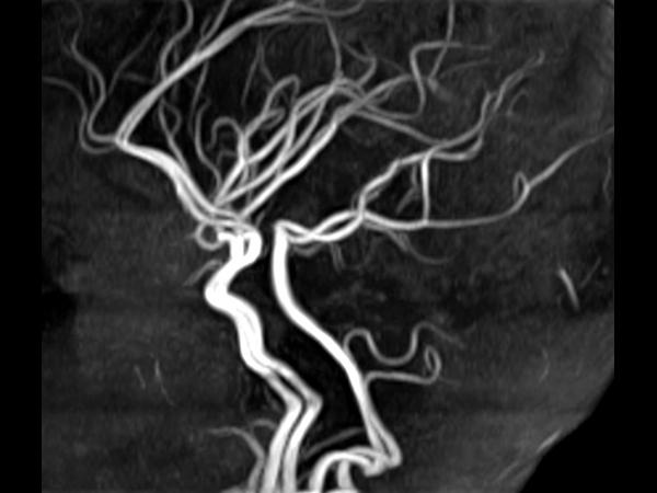 Sagittal 3D TOF (MIP)