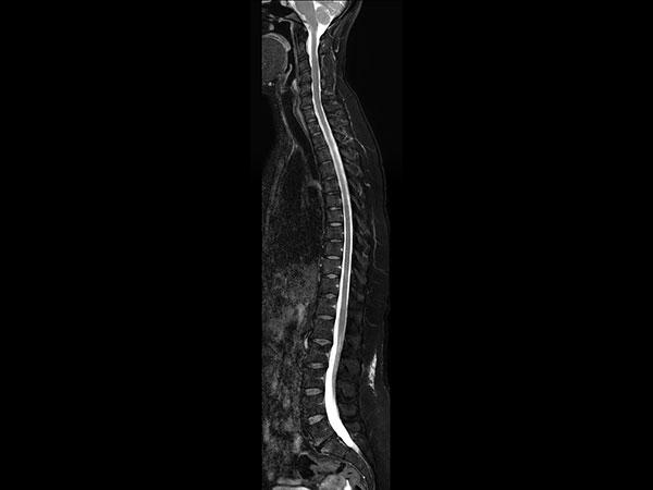 Sagittal T2w TSE mDIXON XD (Water only)