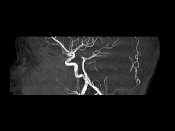 Sagittal 3D Inflow
