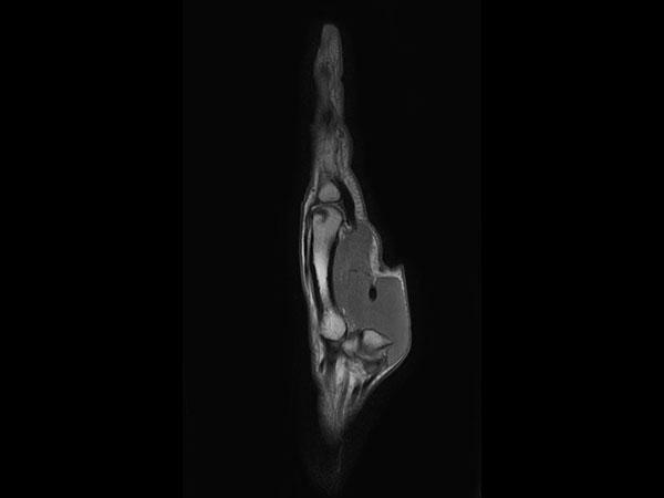 Sagittal PDw TSE mDIXON XD (In Phase)
