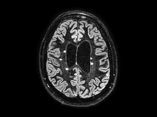 3D BrainVIEW Double IR - Axial reformat