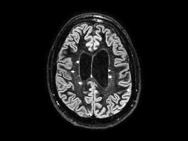 3D BrainVIEW Double IR - Axial reformat<b>Compressed SENSE</b>
