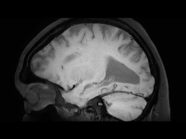 3D BrainVIEW Black Blood (post-gado) - Sagittal reformat<b>Compressed SENSE</b>