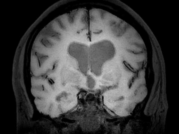 3D BrainVIEW Black Blood (post-gado) - Coronal reformat<b>Compressed SENSE</b>