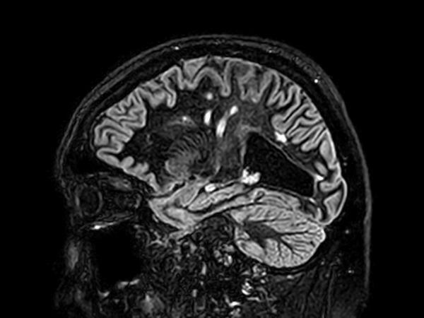 Sagittal 3D BrainVIEW Double IR