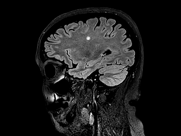 Sagittal 3D BrainVIEW FLAIR