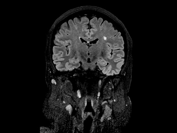 Coronal 3D BrainVIEW FLAIR (reformat)