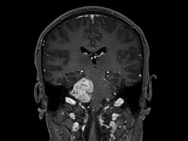 Coronal 3D T1w TFE BrainVIEW with gado (reformat)