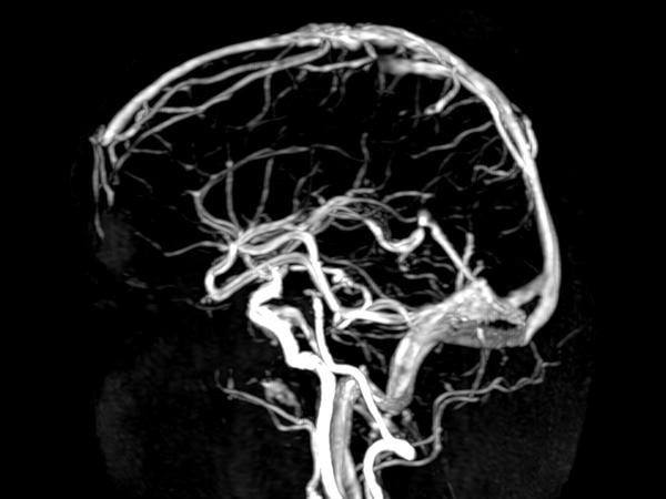 CE MRA (arterial phase) <b>Compressed SENSE</b>