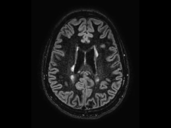 3D Double IR BrainVIEW (reformat) <b>Compressed SENSE</b>