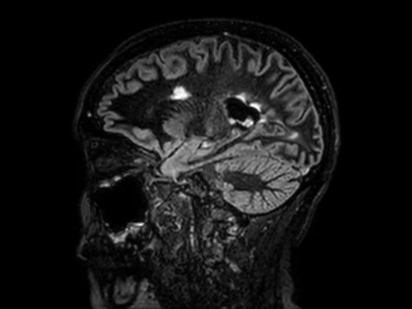 3D Double IR BrainVIEW <b>Compressed SENSE</b>