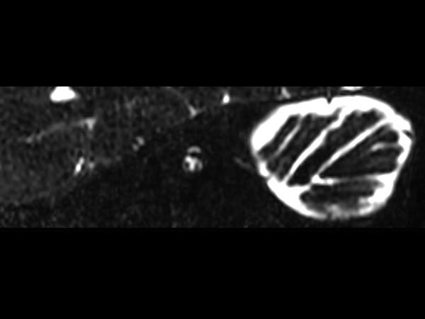 IAC - T2w TSE 3D DRIVE (Right oblique reformat) <b>Compressed SENSE</b>