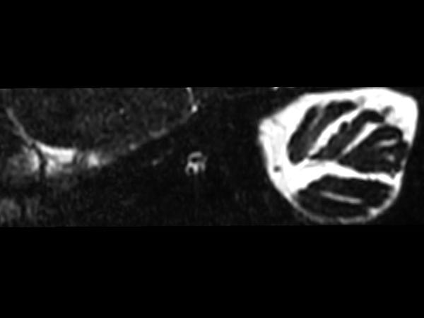 IAC - T2w TSE 3D DRIVE (Left oblique reformat) <b>Compressed SENSE</b>