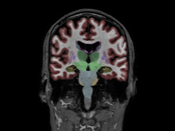 Coronal reformat 3D T1w TFE with NeuroQuant segmentation