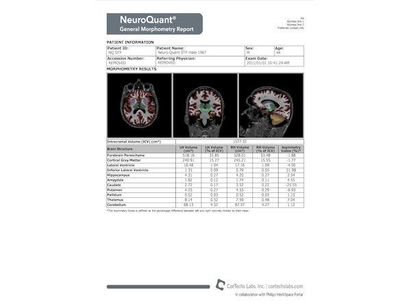 NeuroQuant - Morphology report