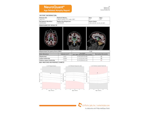 NeuroQuant - Age related atrophy report