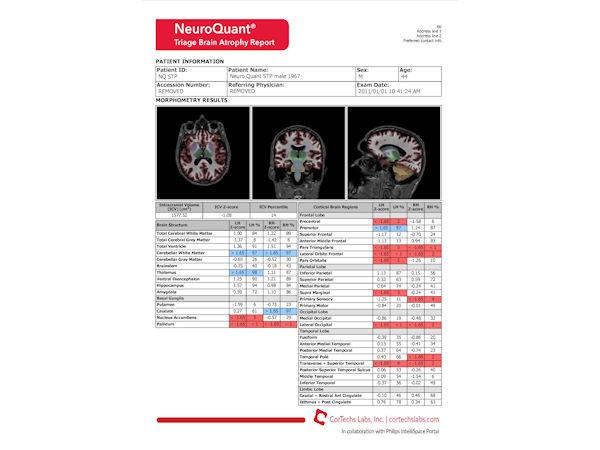 NeuroQuant - Triage brain atrophy