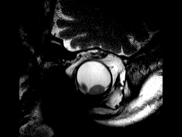 2D T2w TSE - Oblique coronal