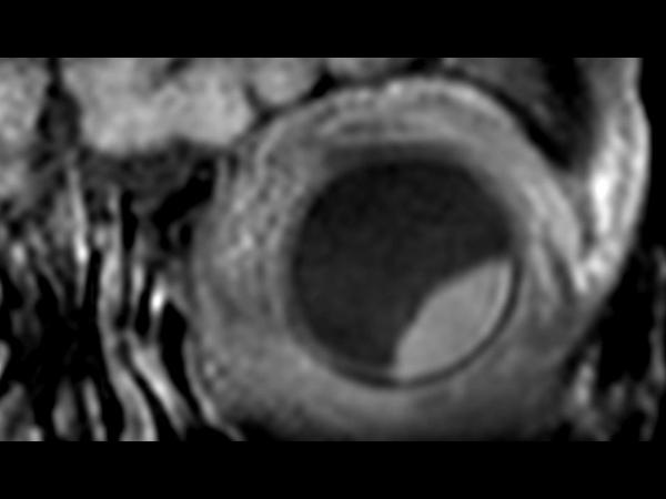 3D T1w TSE FatSat - Coronal reformat